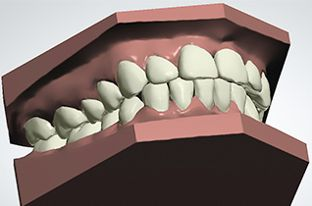 Larvalis – unsichtbare Zahnspange zu garantiertem Preis